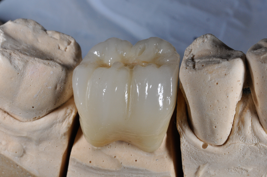 PORCELAIN CROWNS ON METALLIC SUPPORT