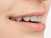 Aparate Dentare Fix