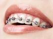 Aparate Dentare Fix Semifizionomic