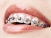 Detartraj-Aparat Dentar Semifizionomic
