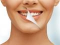 Stomatologie Bucuresti-Estetica Dentara