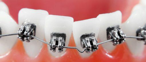cat costa aparatul dentar in total